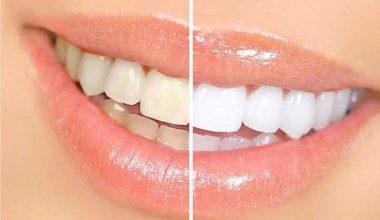 Evde Diş Beyazlatma Teknikleri